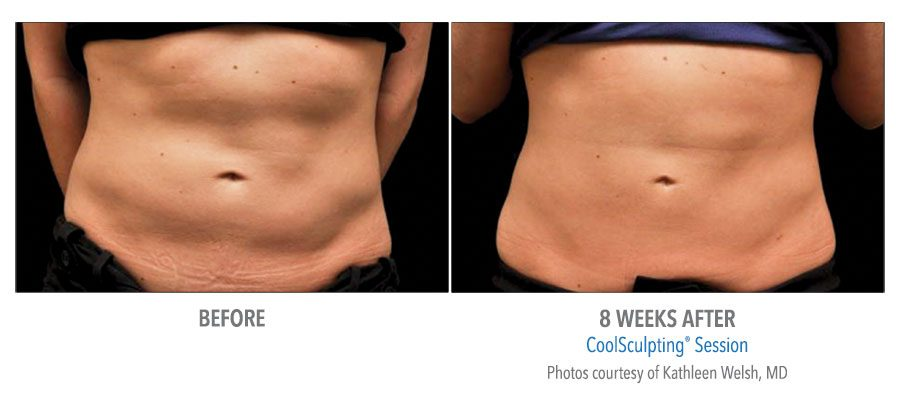 B&A-Welsh-AB-2Set-8wk-LoRes